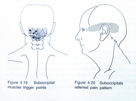 trigger point suboccipital muscle1