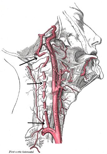 Vertebral_artery