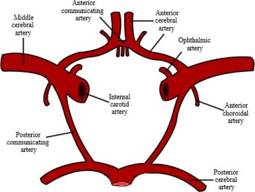 Circle_of_Willis_lg
